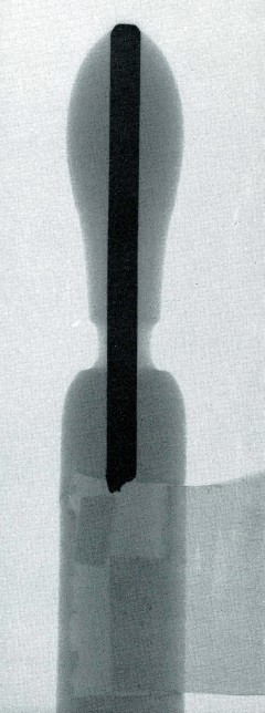 X-ray of an Enfield Chair Finial, Enfield, Connecticut, from The Shaker Chair by Charles R. Muller and Timothy D. Rieman (The Canal Press, 1984), page 81. Photograph courtesy of the authors, X-ray technician, Molly Backup.